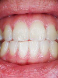 Effektiva bettskenor mot tandgnissling